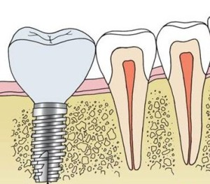 Dental Implant Diagram showing missing teeth replacement treatment in Orange, CT