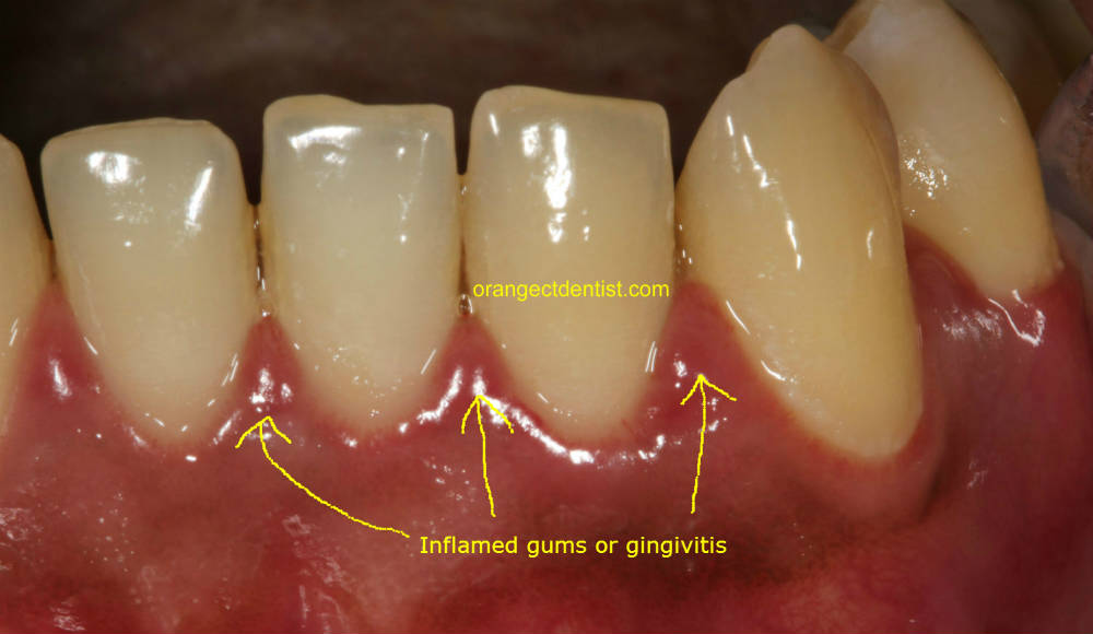Photo or Picture of inflamed gums or gingivitis on patients at dentist office West Haven and New Haven CT