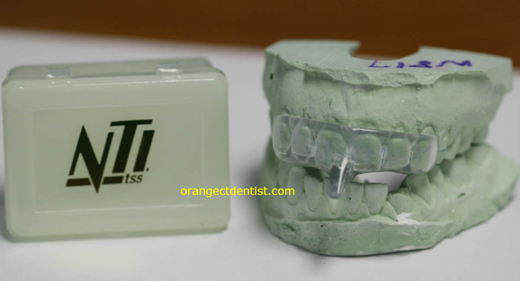 NTI Appliance or Nightguard used for headaches due to grinding or bruxing or clenching linked to TMD or TMJ
