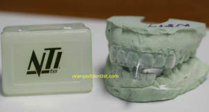 NTI nightguard appliance for stressed Connecticut bruxers
