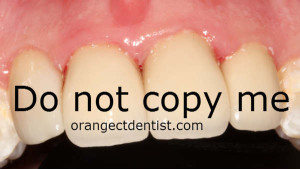 Photo of teeth with do not copy watermark
