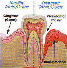 Diagram of healthy and non healthy gums for dentist patients in Milford and Derby
