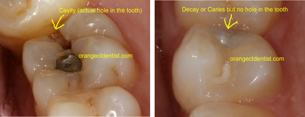 Photo of tooth cavity and dental decay on teeth which both need fillings