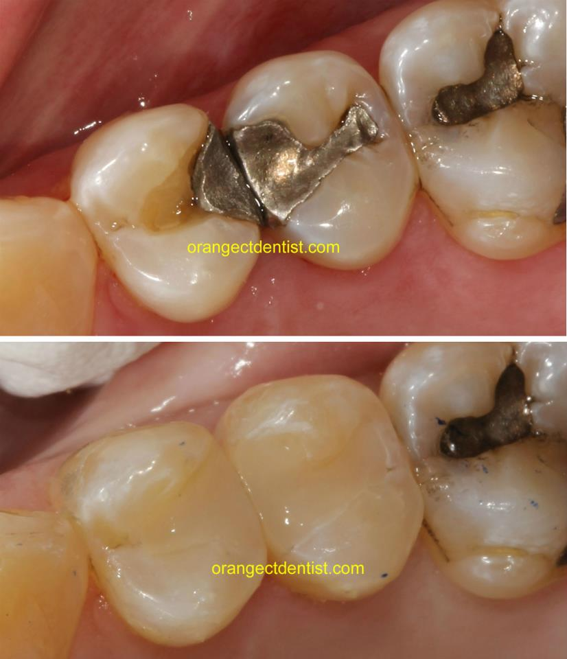 Silvery Mercury Amalgam Filling Removal and Replacement Photos in Orange, CT and Woodbridge, Milford, New Haven, CT
