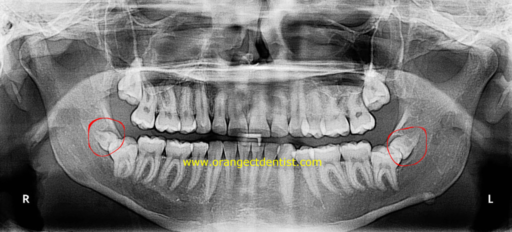 X-ray of supernumerary lower wisdom teeth on panoramic dental x-ray.