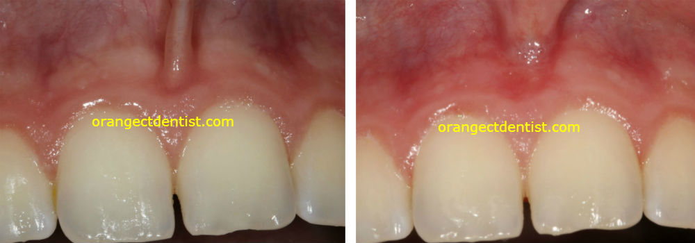 Before and after photo picture laser frenectomy or frenulectomy dentist Orange CT