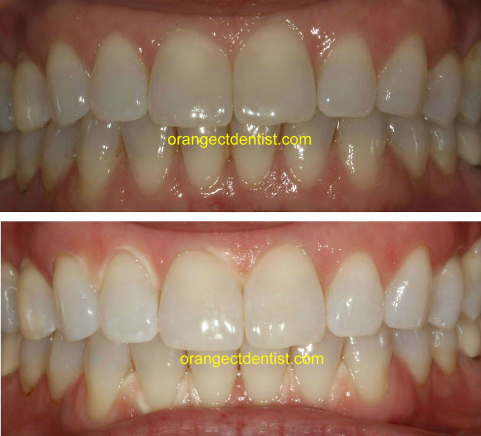 Teeth whitening photos before and after of bleaching for Orange, Milford, and Woodbridge, CT
