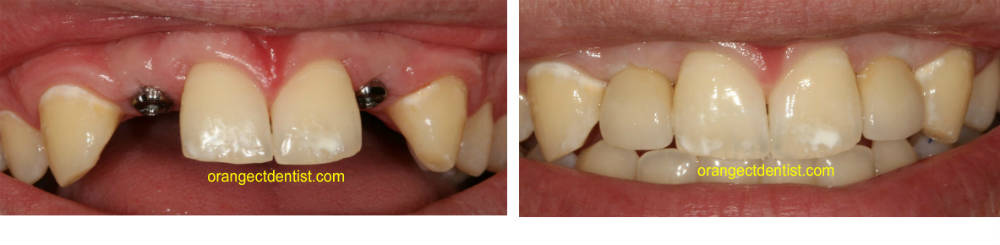 Dental Implant photos before and after Orange and West Haven, CT dentist