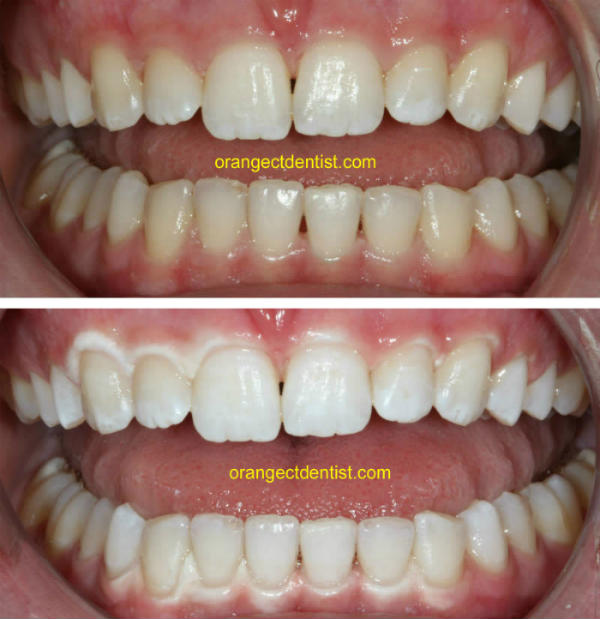 before and after photo teeth whitening bleaching of teeth for Orange and West Haven, CT
