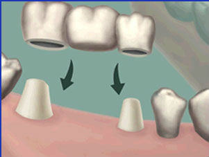 Dental Bridge uses adjacent teeth for support and is used to replace missing teeth for Orange and Woodbridge patients