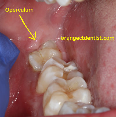 Photo of Operculum over a wisdom tooth from a dental patient from West Haven, CT