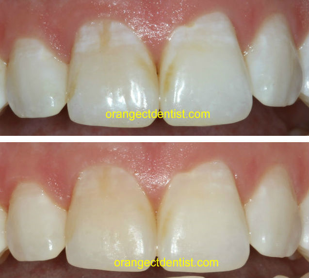 Brace Teeth White White Spots on Teeth After