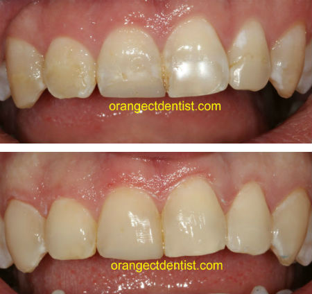 Dental bonding before and after photo in Orange and Woodbridge, CT