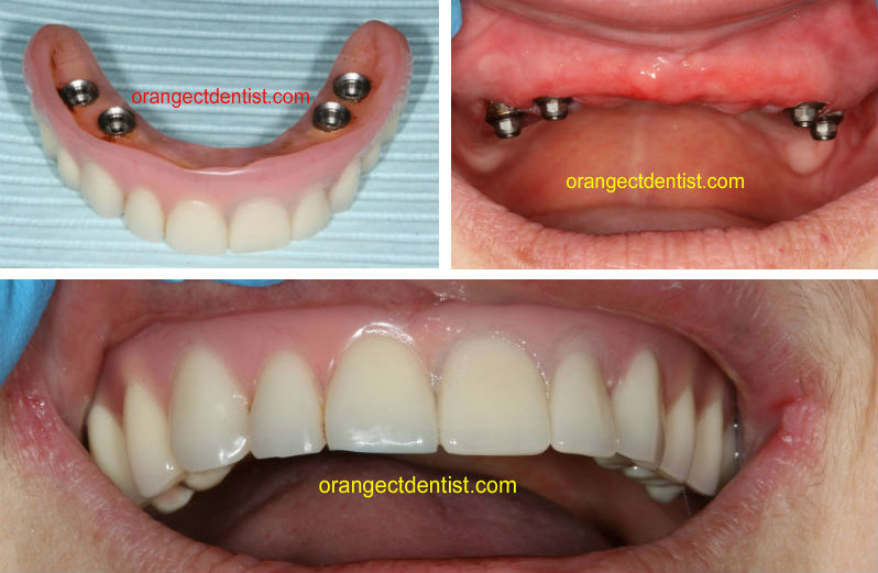 Photo and Picture of implant supported upper denture done in our Orange, CT practice in New Haven County