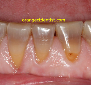 tetracycline staining teeth photo at Orange and West Haven CT dentist