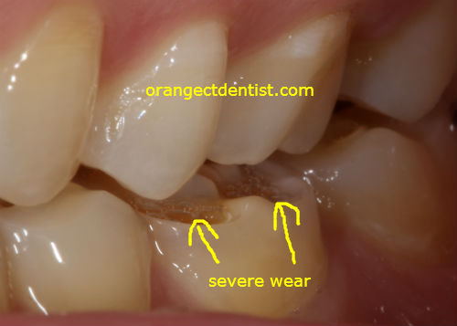 Photo or Picture of wear facets on teeth on patient who grinds bruxism