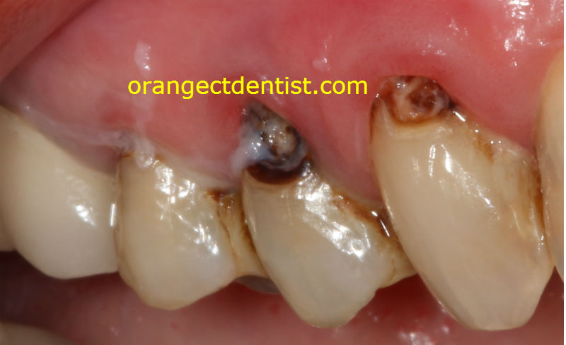 photograph and picture of cavities from dry mouth with ropey saliva