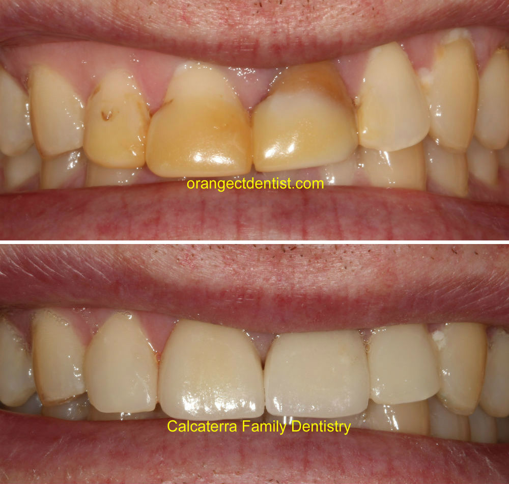 Before and after photos of all ceramic crowns on front teeth on a patient from Milford, CT