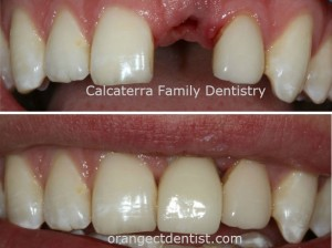 Before and after photo of dental implant for patients in Orange and Woodbridge CT