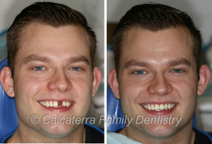 Before and After photo and picture of dental implants for a front tooth