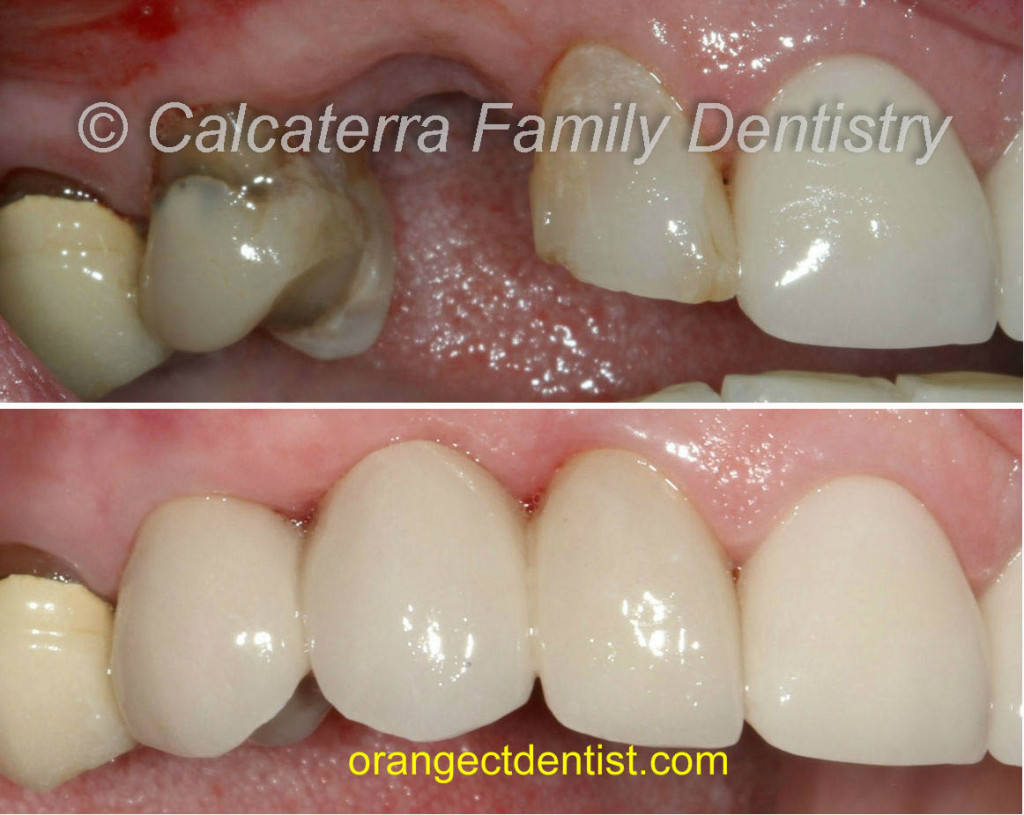 Before and after bridge photo for missing canine teeth or tooth