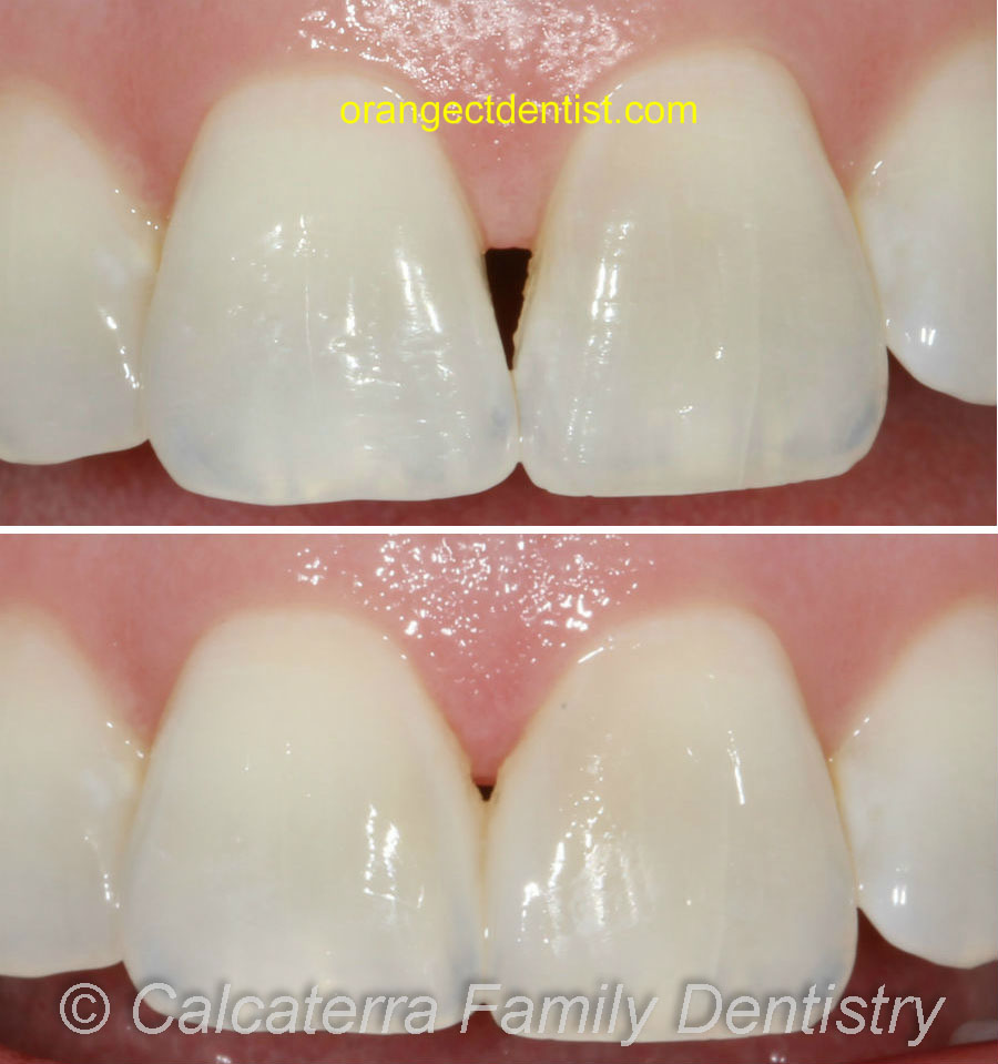Before and after photo of dental black triangle being fixed with bonding