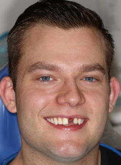 A beautiful pre-operative dental implant photo
