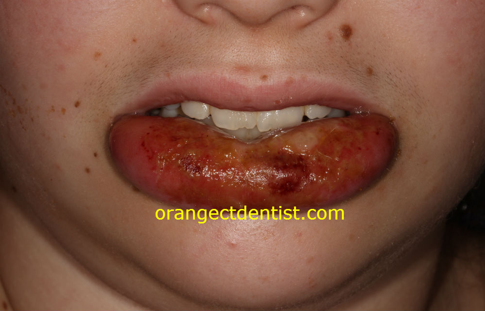 Detailed photograph and picture of lip biting while numb at dentist