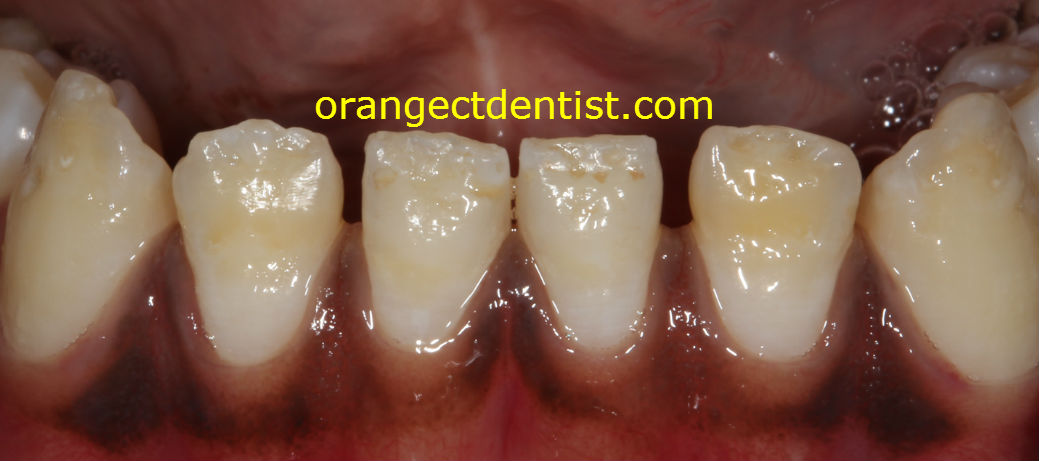 Dental Fluorosis picture on lower teeth