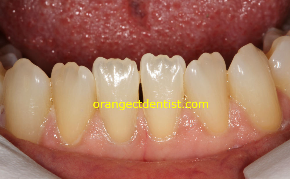 amazing quality photo of teeth mamelons on adult lower incisors