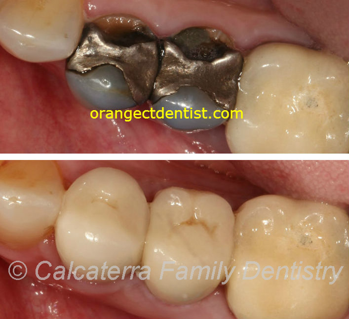 Before and After photos of all ceramic and porcelain dental crowns