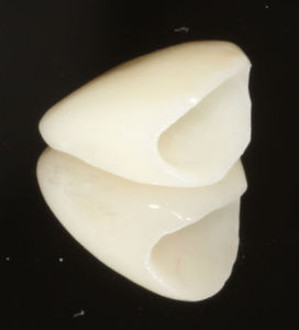 dental crown photo showing a reflection in the mirror