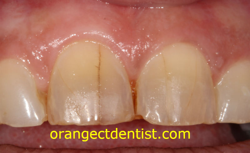 teeth grinding photo showing cracks and craze lines on front teeth