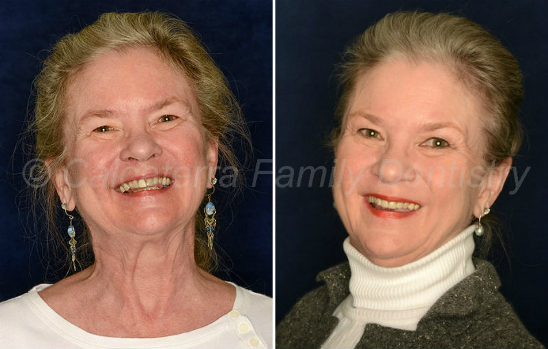 Before and after portrait photos showing dental porcelain veneers on teeth