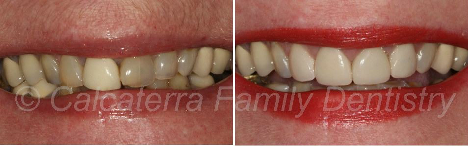 photos showing before and after of porcelain veneers on front teeth