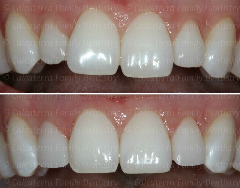 Before and After photos of cosmetic shaping of poorly shaped incisor teeth