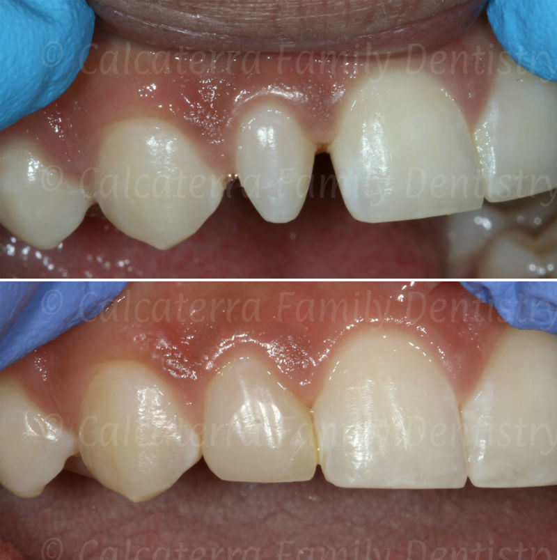 Before and after photo fixing peg laterail incisor with bonding