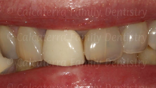 Front tooth crown with a bad color and shade match