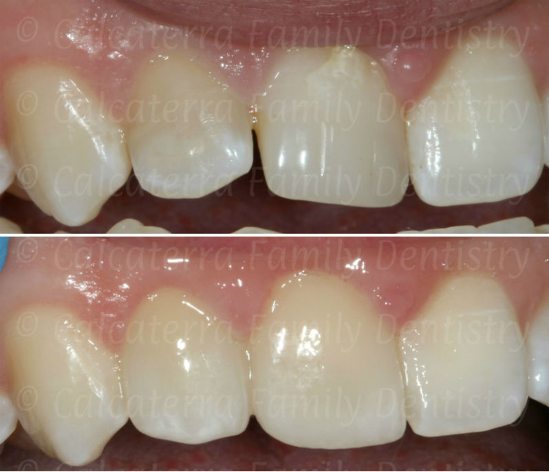 high quality before and after front teeth photo showing shade matching