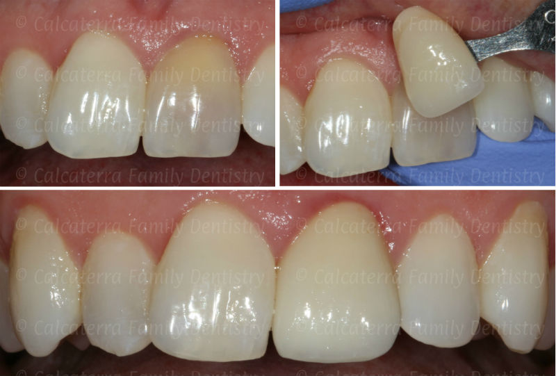 Process to match a front tooth crown by color and best dental shade.