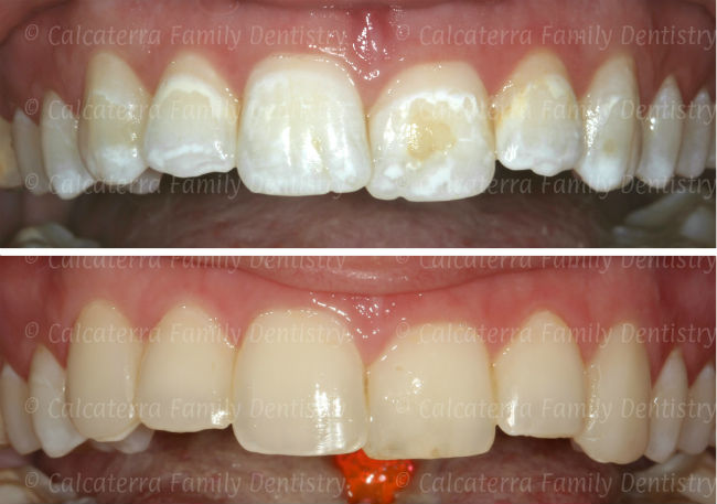 Before and After photos showing fixing white spots with bonding