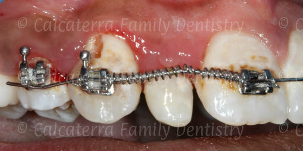 Not brushing with braces on leads to white spots
