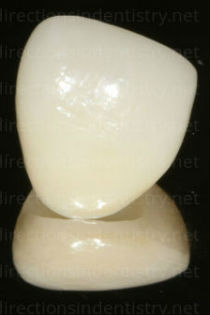 dental crowns from China can contain lead