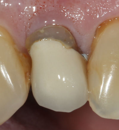 photo of a black line at the gumline of a dental crown