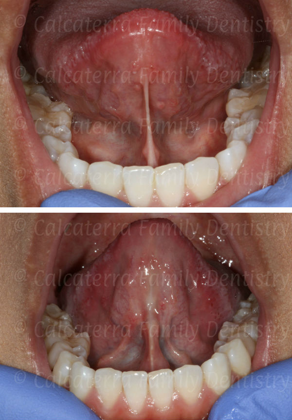 Before and after laser lingual frenectomy photogragh
