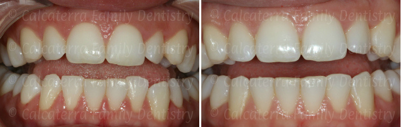 Before and after Invisalign photo showing correction of crowded lower incisors