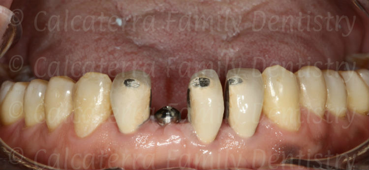 lower incisor crowns after orthodontic treatment