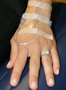 IV in the hand for intravenous sedation dentistry with midazolam (versed) in Connecticut