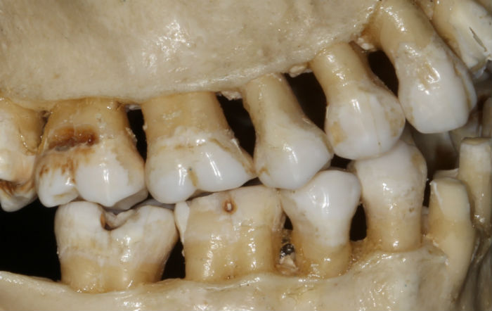 bone impacts why lower wisdom teeth hurt more