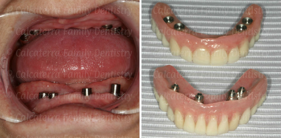 Implants to retain a fixed complete upper and lower denture.